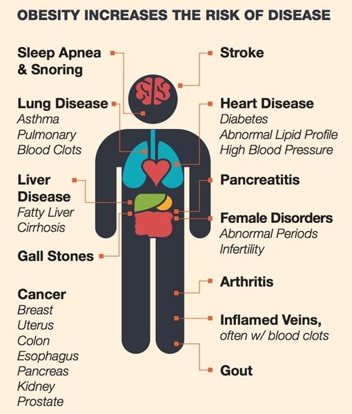 risiko obesitas pada kesehatan